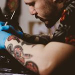 How Laser Tattoo Removal Works