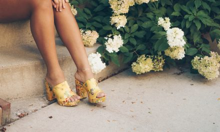 Varicose Veins: Identifying, Treating & Aftercare