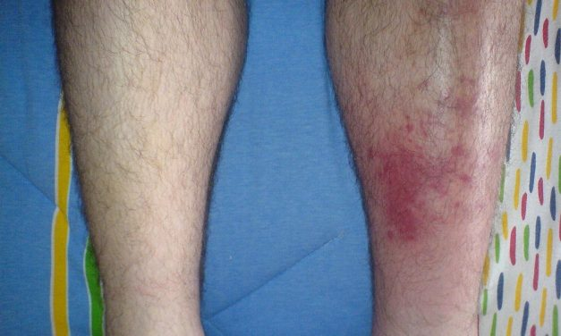 What Causes Cellulitis and How Can You Treat the Symptoms?