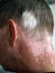 Man with Vitiligo On Neck