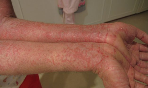 Understanding Eczema: From Types to Treatment