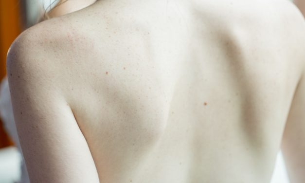The Expert Way of Safely Removing Skin Tags